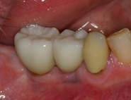 Fix molar root canals gone bad